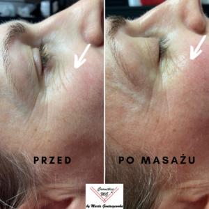 Efekty masażu Kobido, likwidacja zmarszczek pod oczami, masaż Kobido w Tarnowie